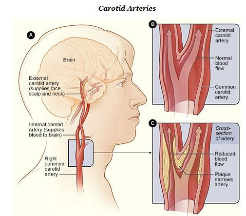 Carotid Artery Thickness..